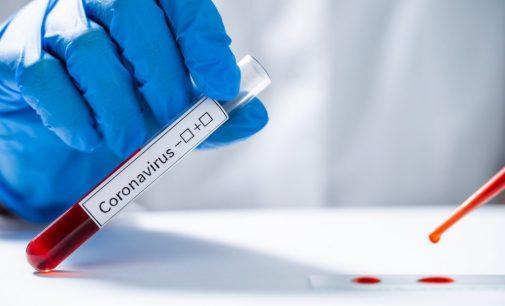 Sanidad suma 616 nuevos casos de coronavirus y 2.918 altas en la Comunitat Valenciana