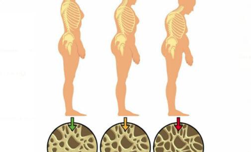 Lucha contra la osteoporosis con ejercicio en Doce
